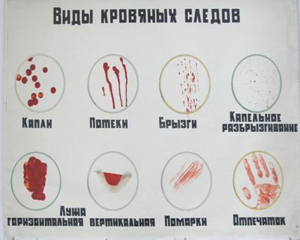 ekspertnoe-issledovanie-sledov-spermi